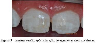Arquivos Em Odontologia Tratamento De Fluorose Dentaria Moderada