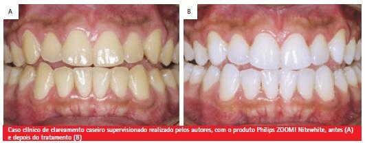 Revista Da Associacao Paulista De Cirurgioes Dentistas Perguntas E