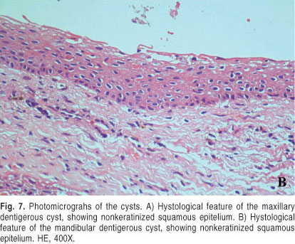 case study of eruption cysts This is part one in a series, and the videos get better this is the first time i have tried to extract these type of cysts the reason for this is twofold.