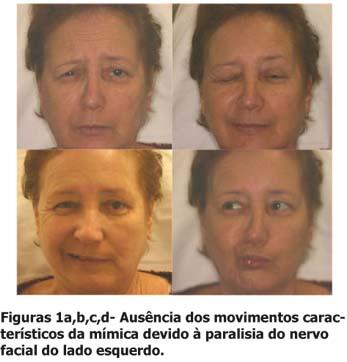 Paralisia facial após técnica anestésica mandibular