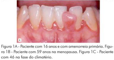 amenorréia primária pdf