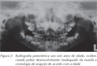 avaliação ortodontica o que é