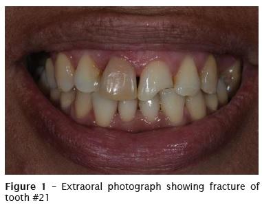heraus dental hanau