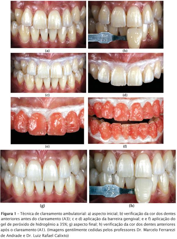 Rsbo Online Repercussoes Endodonticas Dos Procedimentos Clareadores