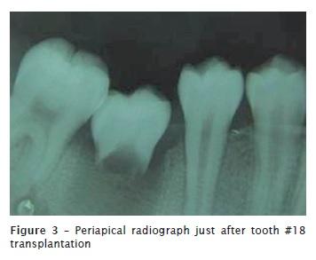 Dental autotransplant: case report
