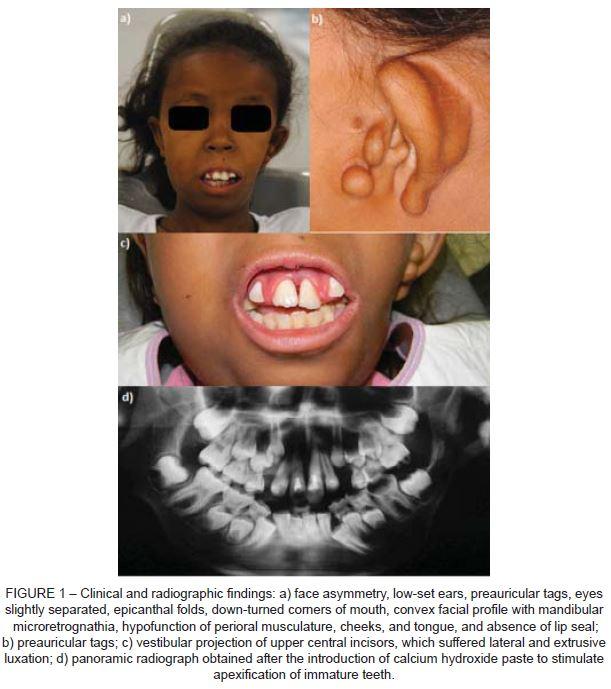 anesthesia local odontopediatria pdf free